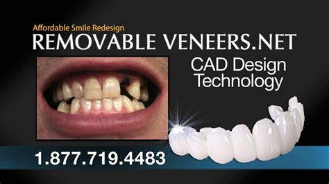 A Snap On Smile Alternative Local Dentist - YouTube